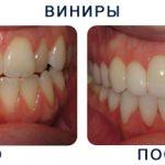 Виниры на зубы в Москве
